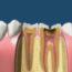 Rozwój próchnicy oraz wpływ chorych zębów na całe ciało
